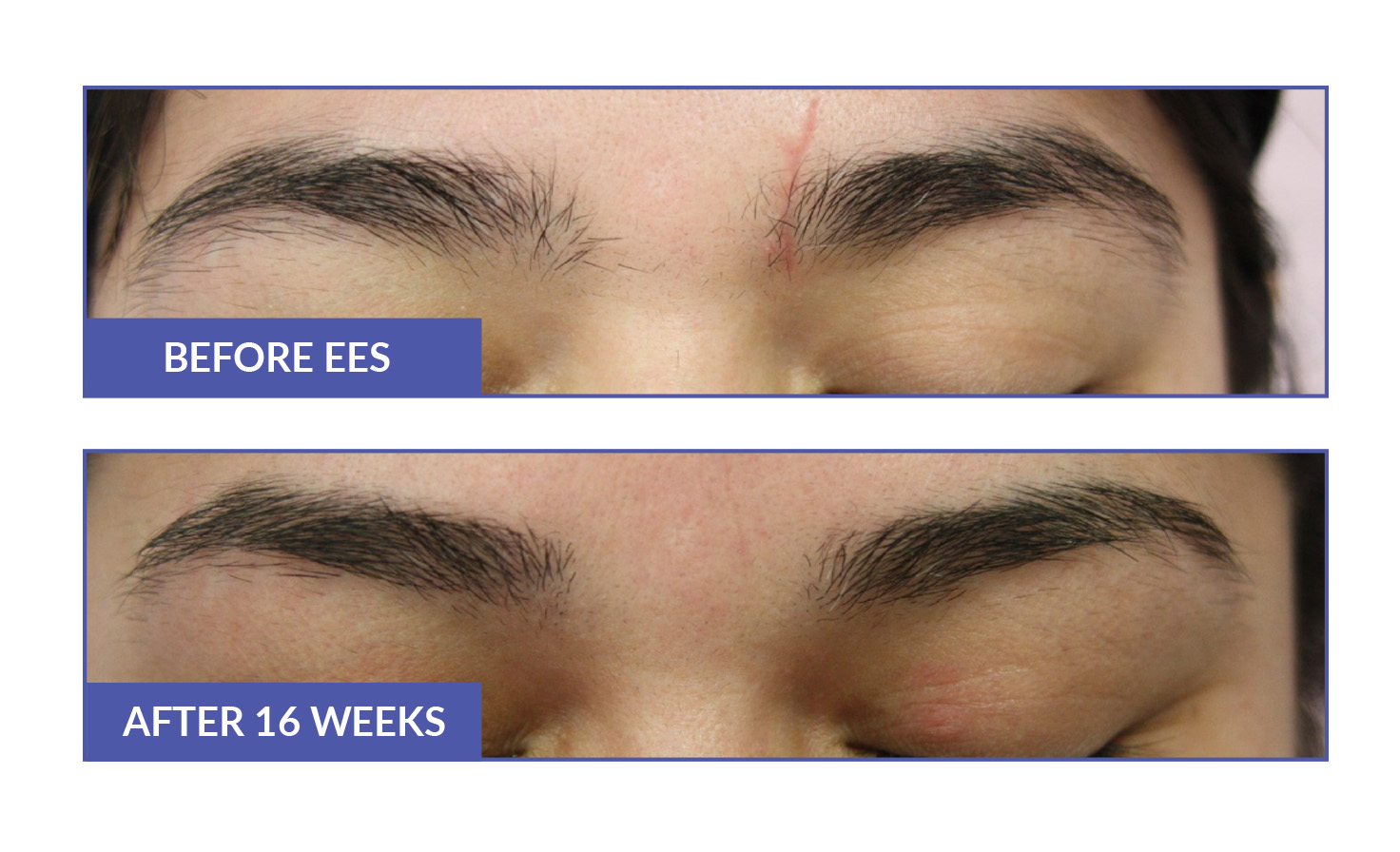 eyebrow hair growth with ees